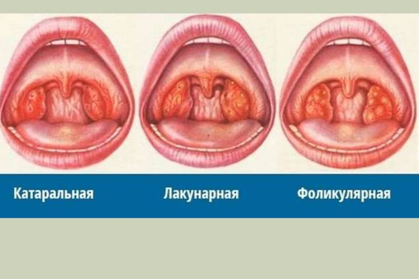 What is best for cold sores not herpes